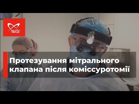 ПРОТЕЗИРОВАНИЕ МИТРАЛЬНОГО КЛАПАНА после комиссуротомии | Борис Тодуров