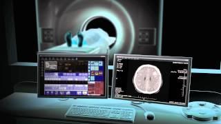 Animation des CT-Scans an der Florida Hospital Kissimmee