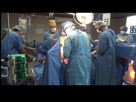CerebralCerebralarteriovenous malformationCerebralCerebralarteriovenous malformation(CerebralCerebra.