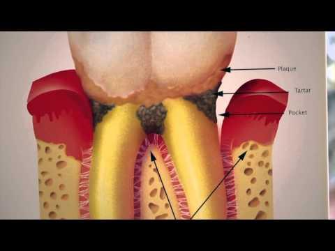 Did You Know...? คุณรู้หรือไม่ ฟันคุดคืออะไร?