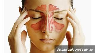Аллергический ринит. Как лечить аллергический ринит.