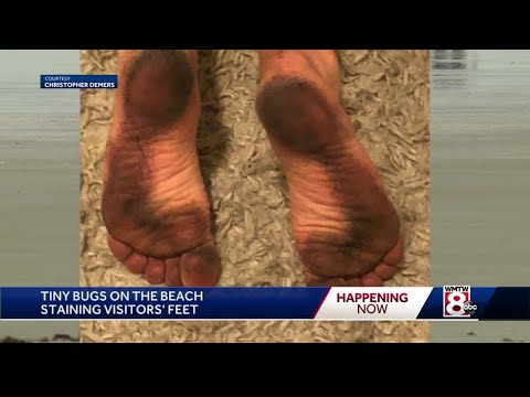 Beach-bugs-are-staining-peoples-feet-in-Maine