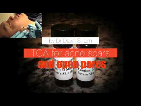 TCA CROSS For Enlarged Pores And Ice Pick Acne Scars