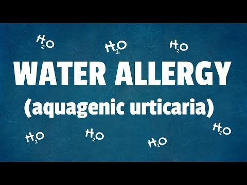Water Allergy: 10 Surprising Facts About Aquagenic Urticaria
