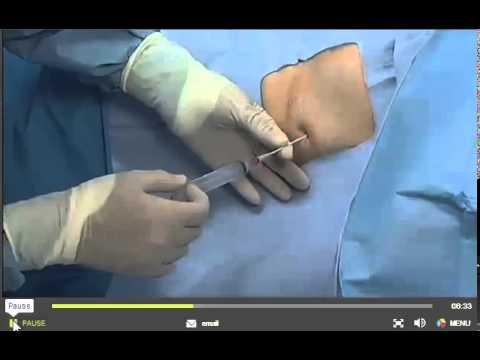 PleurX Catheter Placment