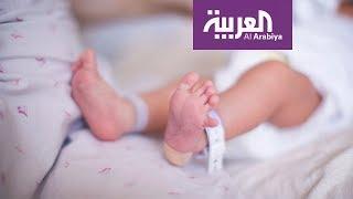 من المهم تشخيص خلع الورك الولادي مبكرا لتفادي العلاج بالجراحة