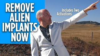 Remove Alien Implants | Instantly Remove Astral Implants Now