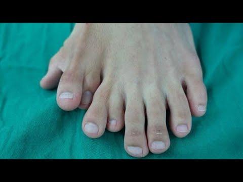 Pria dengan 9 jari kaki telah dioperasi; pria miliki wajah imut padahal  berusia 44 tahun -  TomoNew
