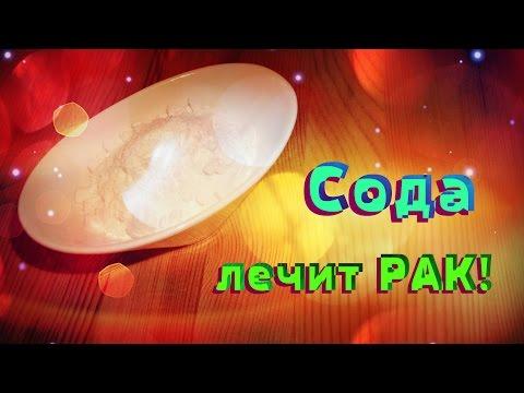 Пищевая сода при молочнице: подмывание, спринцевание