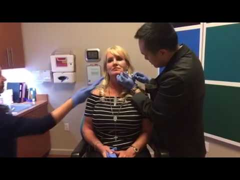 Injectable Filler for Facial Reshaping by Dallas Facial Plastic Surgeon