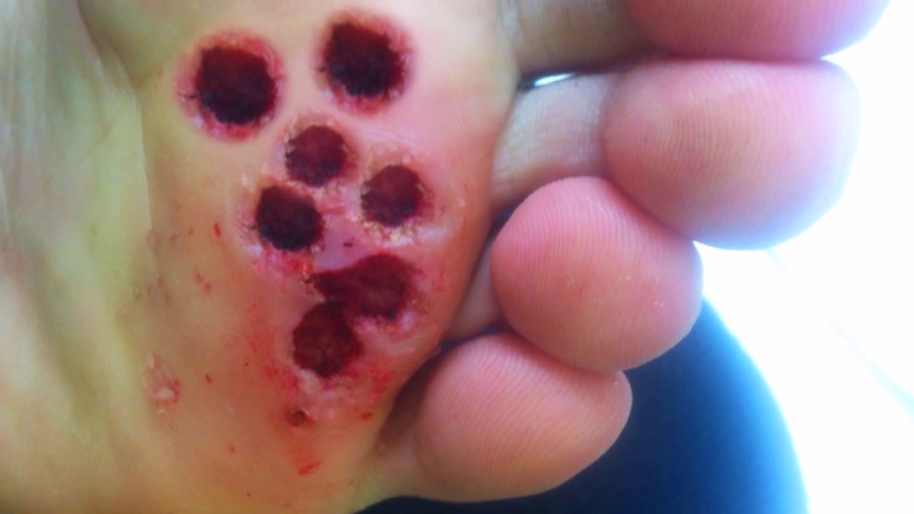 Trypophobia In Nature Irrational Fear Of Irregular Holes Worms