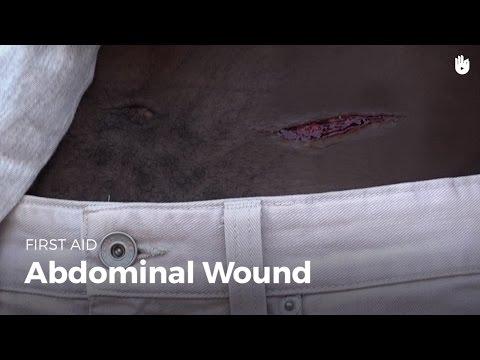 First Aid: Abdominal Wound | First Aid