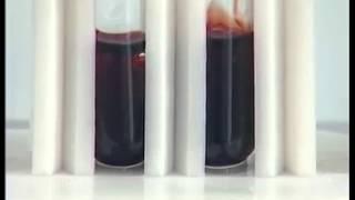 Химическая кинетика и химическое равновесие. Опыт 2