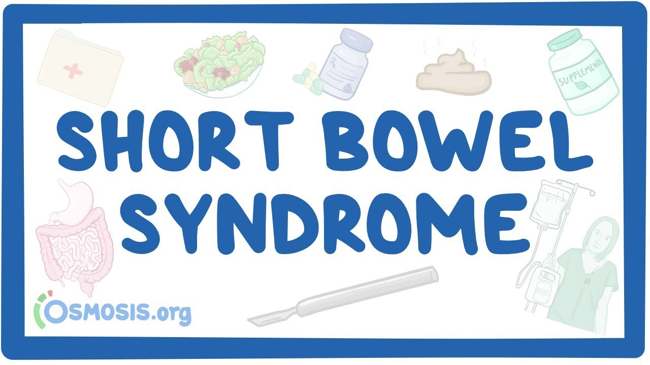 Short bowel syndrome – causes, symptoms, diagnosis, treatment, pathology