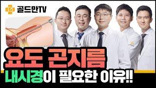 【비정상토크】 요도곤지름(콘딜로마), 내시경 검사 및 …