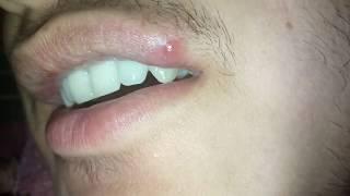 en utilisant feviquick pour enlever l'hybride à points noirs bouton profonds de la lèvre supérieure