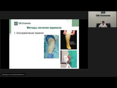 Запись вебинара «Безоперационное лечение варикоза» - Ширинбек О. (17.07.2019)