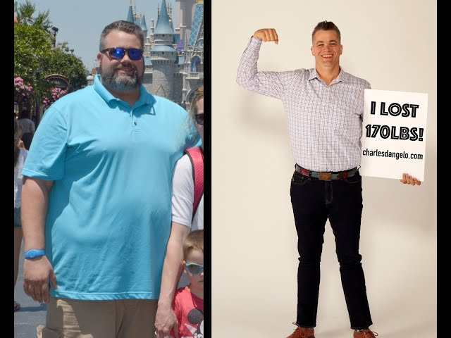 Doctor loses 170lbs!