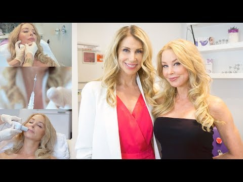 Nurse Jamie Visit: Skin Tightening & Toning with Sugar Threads and Ultherapy