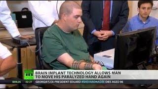 Brain implant allows paralyzed man to move again