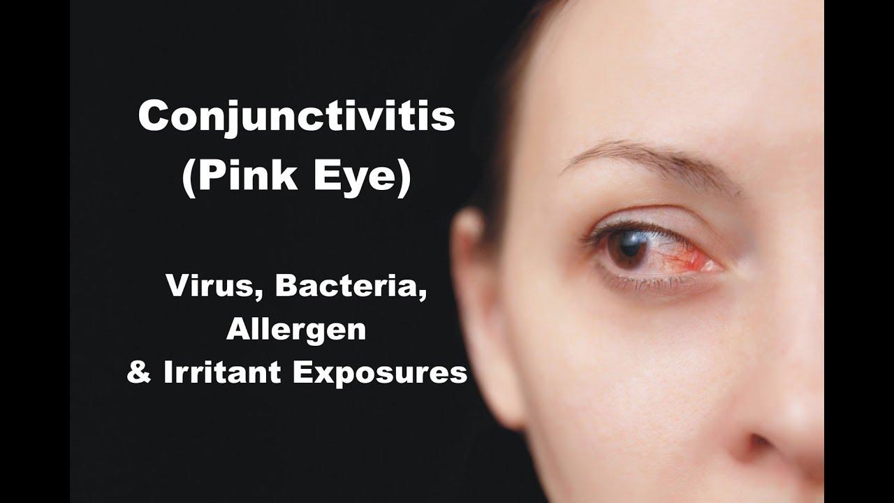 Conjunctivitis (Pink Eye) - Virus, Bacteria, Allergen & Irritant Exposures
