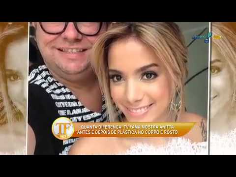 Anitta mostra novo nariz sem curativo youtube thecheapjerseys Image collections