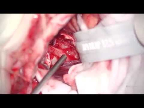 Нейрохирургия и лечение позвоночника в Краснодаре