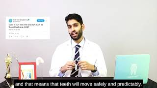 Invisible aligners vs. wire braces - does it hurt?
