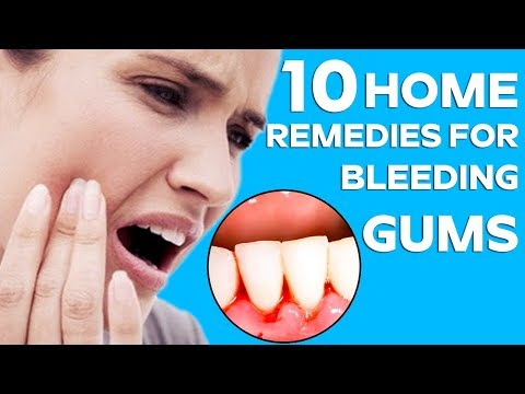 TOP 10 Home Remedies For Bleeding Gums | Home Remedies For Toothache