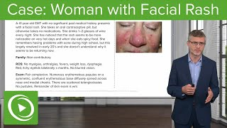 Derma Case: 41-year-old Woman with Facial Rash: Dermatology | Lecturio