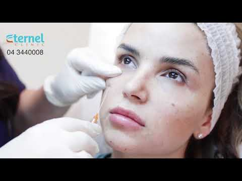 Treatment of Dark Circles with 💉Injectable Fillers