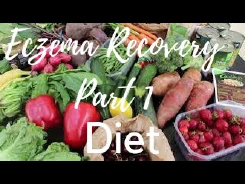 PART 1 NATURAL ECZEMA RECOVERY | DIET | healthy skin lose weight feel great healing eczema naturally