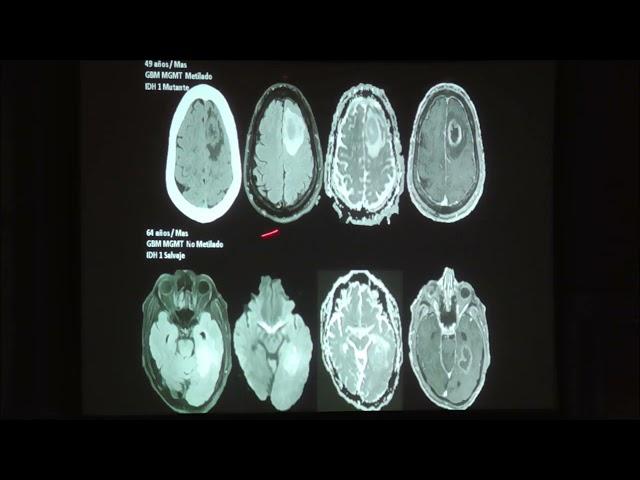 Tumores cerebrales: aspectos relevantes de la nueva clasificación. Nicolás Sgarbi