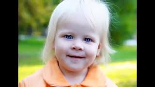 【閲覧注意】様々な皮膚の奇病・難病まとめ ハーレークイン症 検索動画 9