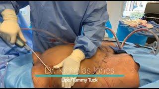 Halo Guys, kali ini team saya yang mengantar klien untuk Liposuction akan langsung mewawancara klien.