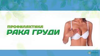 Профилактика рака груди с Анной Куркуриной