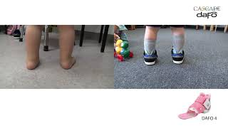 Before and After: Low Tone Pronation | DAFO 4