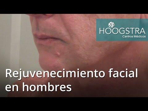 Rejuvenecimiento Facial en Hombres.(18048)