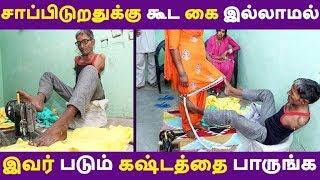 சாப்பிடுறதுக்கு கூட கை இல்லாமல் இவர் படும் கஷ்டத்தை பாருங்க Tamil News | Latest News | Viral