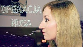 VLOG #1 ✰ Będę miała operację plastyczną nosa!