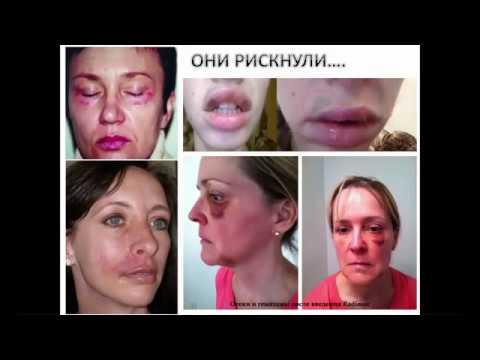 Гиалуроновая кислота в организм без инъекций это реально!