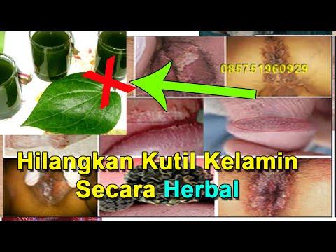 tips-menghilangkan-kutil-secara-alami-(-herbal-)