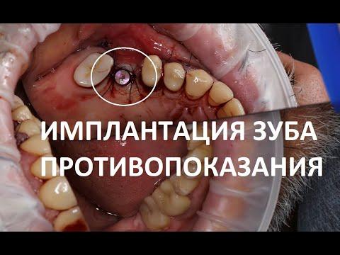 Противопоказания и показания к имплантации зубов, отзывы