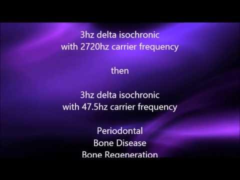 Periodonatal Bone Disease - Delta