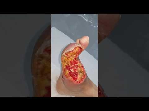 трофическая язва на ноге лечение в домашних условиях трофическая язва народные методы лечения баку