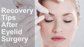 Recovery Tips after Eyelid Surgery