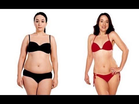 tratamiento hipotiroidismo perdida de peso