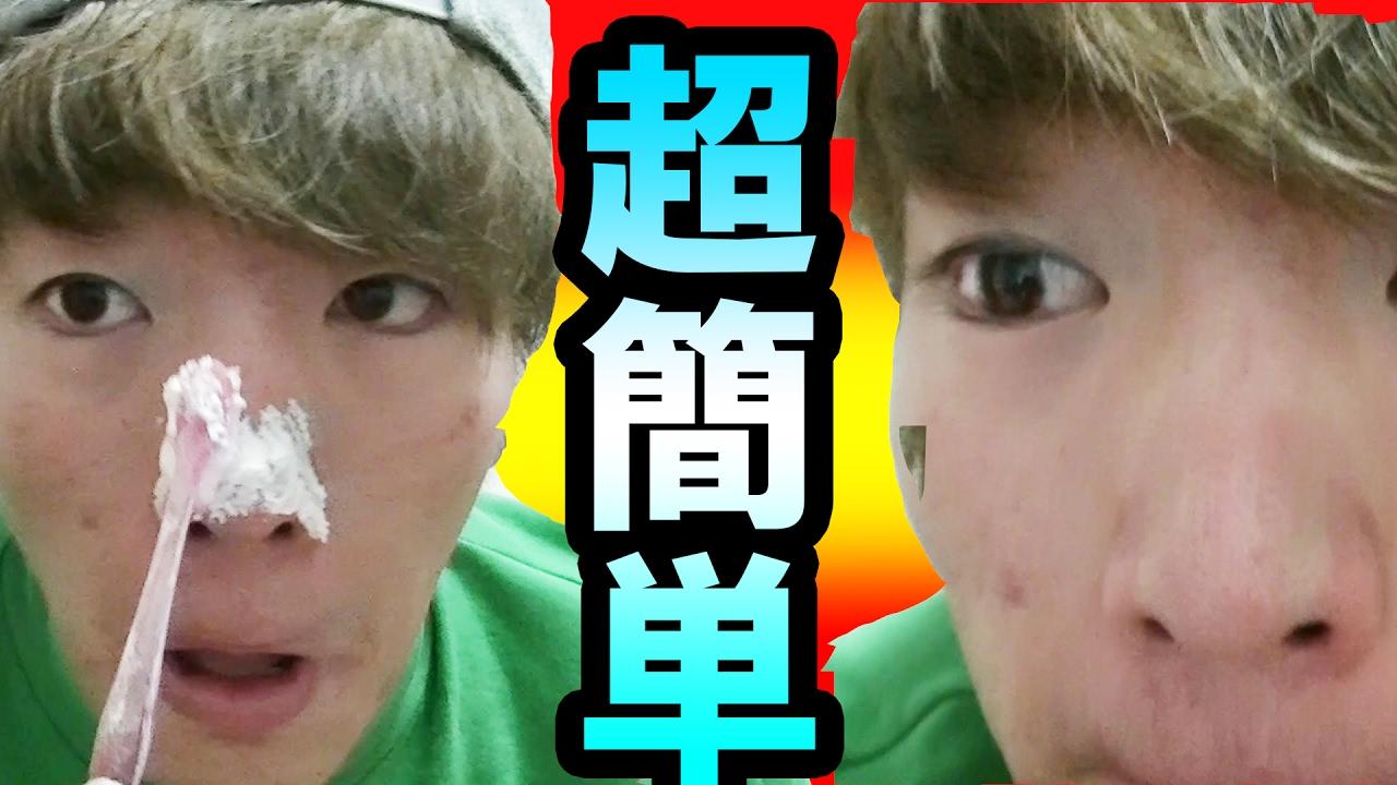 黒ずみ 鼻 の