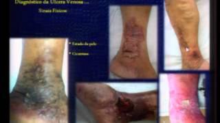 Úlceras de de linfáticas imagens perna