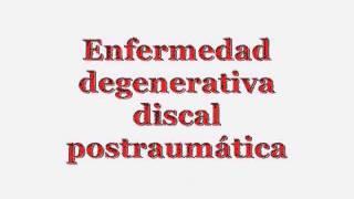 Al lumbar dolor presionar vertebra